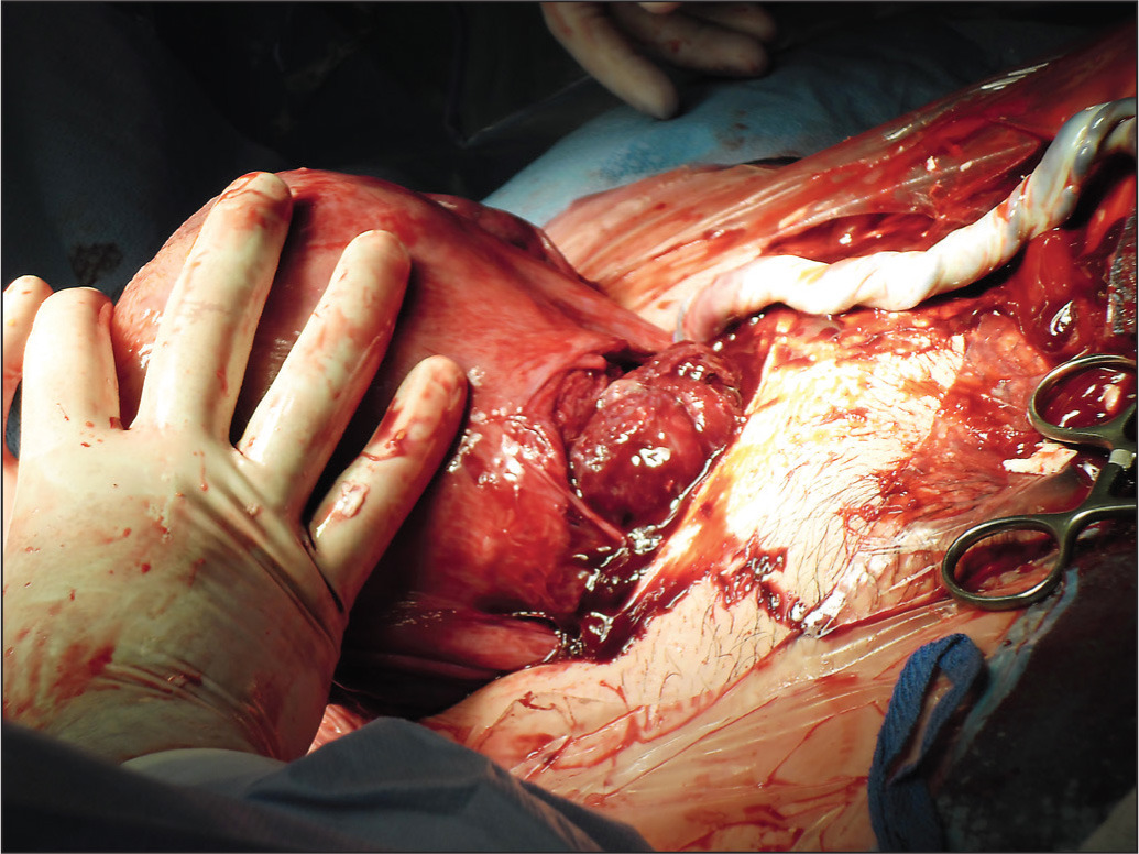 the effect on perioperative bleeding of placental extraction from an exteriorized uterus during